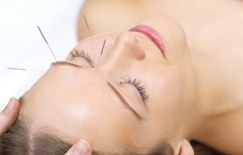 What are the health benefits of acupuncture?